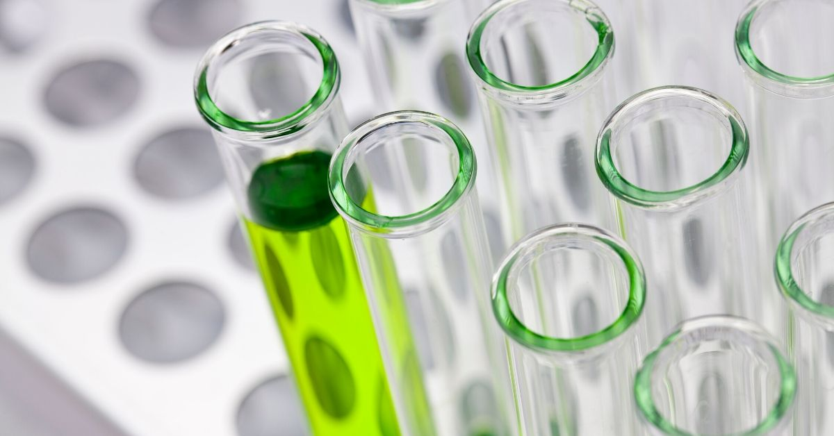 photo of a rack of test tubes with one tube filled with green liquid